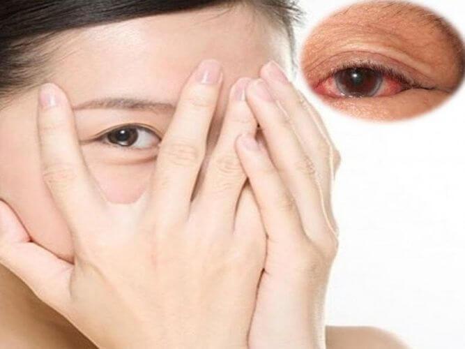 Đối tượng sử dụng Nac eye serum